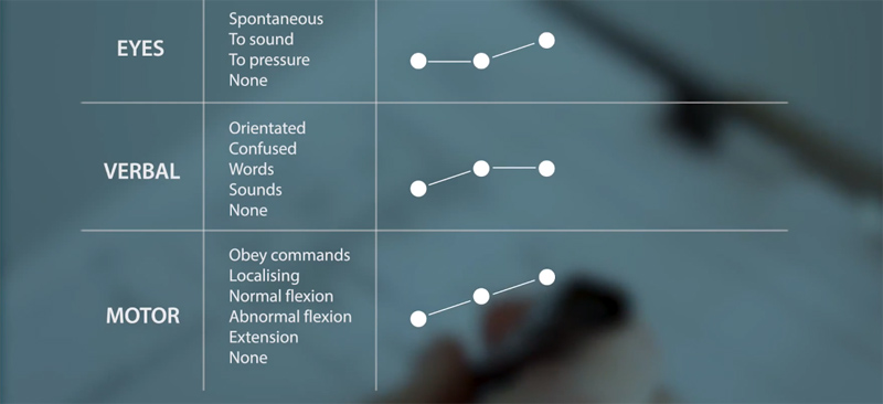 Video still showing the Coma Scale chart